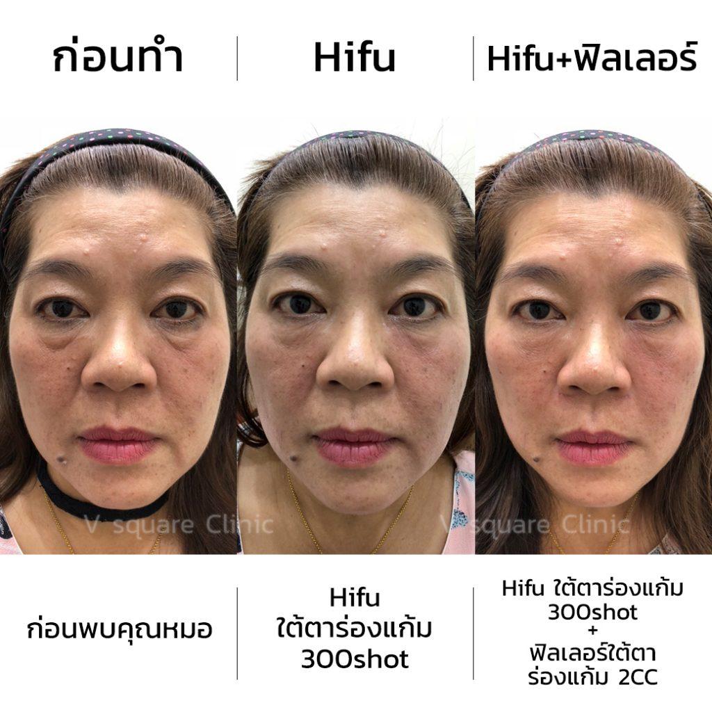 review-hifu-4